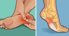 If you suffer from Plantar Fasciitis you need to read this...