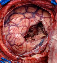 Hole in brain is the result after a tumor is removed. Human Anatomy Chart, Medical Pictures, Nursing Pictures, Surgical Tech, Operation, Nursing Notes, Icu Nursing, Brain Tumor, Anatomy And Physiology