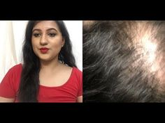 Mooi Naturals Hair Growth Oil/ Best Affordable/ Under Rs500 - YouTube