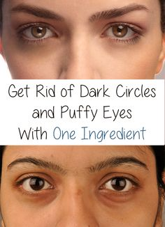 Dark circles and puffy eyes are a problem that can occur anytime. Find out how to immediately get rid of dark circles and puffy eyes with one ingredient.�