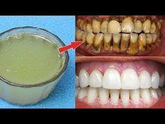 2 Dakika İçinde Evde Dişleri Beyazlatın Çözüm - Sarı Dişler İnci Gibi Nasıl Beyaz Olur ? - Diş Bakım - YouTube
