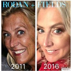 """Check out Carol Jansen Koch's results! Un-freaking-believable! Here's what she had to say: """"Oh my! If I only knew then what I know now. Who thinks freckles and brown spots are cute?! Hmmm Picture on the left is from summer 2011 picture on the right was taken yesterday. Don't wait another day people. Take care of your skin today!!!!"""" REAL people with real results! Let's get you started today!"""