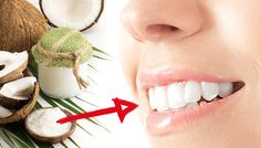 This Evening Trick Will Whiten Your Teeth By Morning — The Alternative Daily Beauty Tips For Hair, Best Beauty Tips, Beauty Hacks, Danette May, Teeth Care, Skin Care, Natural Teeth Whitening, Teeth Cleaning, Recipes