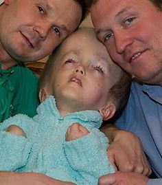 A child of Chernobyl with two caring workers