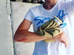 Rules n. 1: don't do stupid things!   #injury #rapha_europe #rapha #strongher #shero #ontherivet #sixs #smithwomen #vittoriatires #bicilive #womenscycling #girlpower  #bikesgirls  #twcweride #igerscycling #likeagirl #cycling #cyclingshots #velo #instadaily #me #radgirlslife #lifebeyondwalls #cyclinglife
