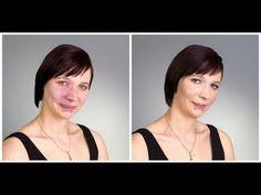 HOW TO: COVER BIRTHMARK - ACNE - SCARS - VITILIGO - TATTOO