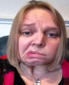 Una enfermedad llamada Parálisis de Bell le deformó el rostro de manera inesperada a esta chica