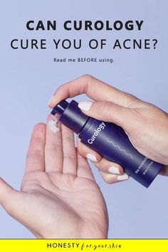 Nothing ever works to get rid of your acne! That's what you feel like right now. You've heard about Curology and you already feel doubtful. Does Curology work? Will it work for me? You're asking all the right questions. Click this pin to find out more including the acne secret not so many people know about. This is the good science. Acne Skin, Acne Prone Skin, Oily Skin, How To Get Rid Of Acne, How To Find Out, Best Neck Cream, Diy Lotion, Best Acne Treatment, Acne Treatments