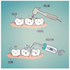 Почему вам следует ухаживать за полостью рта при помощи ирригатора? Ирригатор полости рта - это прибор очищающий полость рта при помощи подачи струи воды под давлением. Главная задача ирригатора - вычищать сложнодоступные места полости рта. Но делает он это значительно проще и быстрее чем та же зубная нить. Кроме того ирригатор справляется со следующими задачами: - Очистка труднодоступных участков - Массаж мягких тканей - Антисептическая и противовоспалительная обработка полости рта…