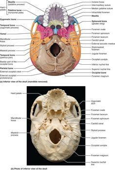 PART 1 THE AXIAL SKELETON - 7.1 The skull consists of 8 cranial bones and 14 facial bones: Human Anatomy and Physiology Anatomy Bones, Skull Anatomy, Skeleton Anatomy, Brain Anatomy, Human Body Anatomy, Human Anatomy And Physiology, Cranial Anatomy, Dental Anatomy, Medical Anatomy