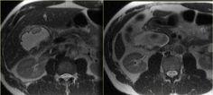 The Radiology Assistant : Biliary duct pathology Caroli Disease, Medullary Sponge Kidney, Portal Hypertension, Pet Ct, Bile Duct, Ulcerative Colitis, Radiology, Ultrasound