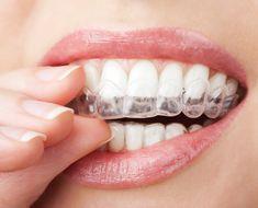 Branqueamento dos dentes com bandeja - fotografia de stock