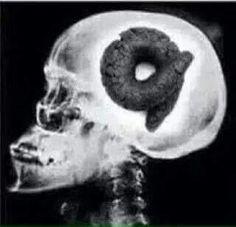 Obama X-ray.