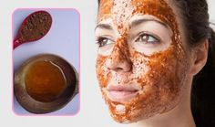 face mask 10 Overnight Acne Remedies, Home Remedies For Acne, Cinnamon Face Mask, Cinnamon Health Benefits, Honey Coffee, Coffee Mask, Acne Solutions, Les Rides, Honey And Cinnamon