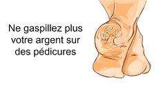 Si vous avez les pieds craquelés ou fissurez, vous n'avez pas besoin de vous ruiner en pédicure. Ces remèdes régleront efficacement vos problèmes.