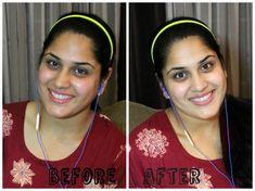 Skin Whitening At Home Info: 3902149308 Whitening Skin Care, Best Teeth Whitening, Skin Lightening Cream, Lighten Skin, Acne Scars, Pole Dancing, Skin Care Tips, Beauty Hacks, Pole Dance