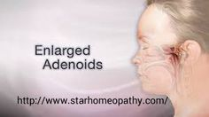 Star Homeopathy - there are a wide range of natural remedies in homeopathy which makes sure the person's immunity is strengthened. Homeopathy offers natural treatment and is highly recommended for adenoid enlargement For more info @ http://www.starhomeopathy.com/adenoids.php #homeopathy #adenoid #treatment
