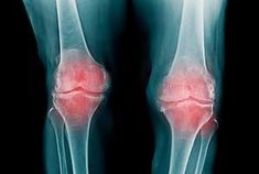 There are three main types of arthritis. There is osteoarthritis which is the kind that happens with wear and tear of the joints, and there is rheumatoid arthritis which is inflammatory and occurs when the immune system isn't function Prevent Arthritis, Rheumatoid Arthritis Treatment, Arthritis Pain Relief, Types Of Arthritis, Selfies, Spine Pain, Puppy Pose, Cartilage, Organic Fruits And Vegetables