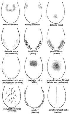 Ayurveda tongue diagnosis
