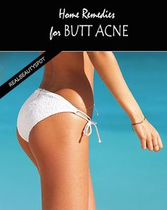 How to Get Rid of Butt Acne Fast | Oil production and Dry skin