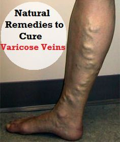 Natural Remedies to Cure and Prevent Varicose Veins ........................................................ Please save this pin... ........................................................... Because for how to tips - Visit! http://TeachingHow.com