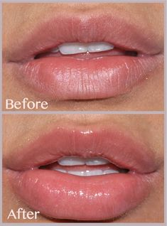 57 Best Lip injection images in 2018 | Lip fillers, Lip