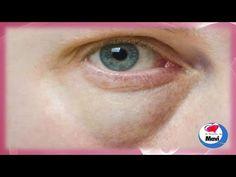 Los mejores remedios caseros naturales para eliminar bolsas en los ojos - YouTube