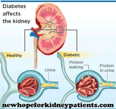 Diabetic nephropathy: symptoms, treatment and complications  A lot of people doesn't show any symptom with diabetic nephropathy. Only when the function of the kidneys gets worse, you will see the following symptoms: ...