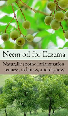 In India, Neem oil has been used to treat skin disease such as Eczema for thousands of years. Learn how it works and how you can use it to soothe the symptoms of Dermatitis including redness, dryness, inflammation, and itchiness Natural Home Remedies, Natural Healing, Herbal Remedies, Health Remedies, Natural Medicine, Herbal Medicine, Secura, Health Tips, Health And Wellness