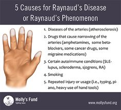Raynaud's phenomenon or disease, simply put, is a problem with blood flow. Learn the symptoms, causes, treatments and how to prevent attacks. What Causes Arthritis, Rheumatoid Arthritis Symptoms, Arthritis Treatment, Arthritis Exercises, Raynaud's Disease, Autoimmune Disease, Vascular Disease, Reynauds Syndrome, Tips
