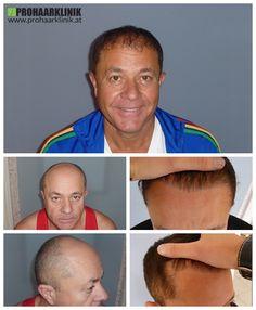 http://www.prohaarklinik.at/haartransplantation-vorher-nachher-bilder/   Ein weiterer 9000+ Haartransplantation - PROHAARKLINIK  Zoltan hatte einen großen und schweren Haarausfall Zone auf der Oberseite seines Kopfes. Unsere Aufgabe war es, füllen Sie es, auf der besten Weise möglich, mit den natürlichen Haaransatz zu schaffen. Er hatte eine 2 Tage lange Behandlung, und werden Sie ein glückliches und noch mehr selbstbewussten Mann nach 1 Jahr. Hergestellt von PROHAARKLINIK.