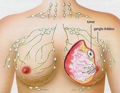 """Según un estudio """"este alimento"""" podría protegernos frente al cáncer de mama y hacer frente a una serie de bacterias nocivas que cursan con la enfermedad."""