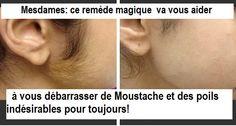 Les poilssur le visage constituent un problème majeur pour chaque femme, que ce soit dans la moustache, les oreilles, ligne de la mâchoire ou la barbe. Nous savons tous que l'épilation standard peut aider, mais il peut aussi provoquer l'apparition de l'acné et des rougeurs sur les parties sensibles du visage. Le pire est que […] Moustaches, Madame, Detox, Create, Fur, Unwanted Hair, Natural Medicine, Beauty Care, Beauty Tricks