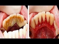 Video shows 3 best ways to remove teeth plaque or tartar at home without visiting a dentist for your dental cleaning. Remedies For Strong and White Teeth: ht. Oral Health, Dental Health, Dental Care, Health And Wellness, Health Fitness, Gum Health, Health Remedies, Home Remedies, Natural Teeth Whitening