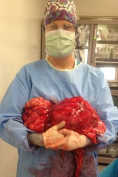 The University of Arizona Medical Center surgeons worked for 10 hours to remove the massive liposarcoma, a cancer in the abdominal muscle, that had invaded Marcey DiCaro's inferior vena cava -- the body's largest vein. DiCaro stopped breathing and her hea Ovarian Tumor, Gross Anatomy, Muscle And Nerve, Surgical Tech, Med School, Abdominal Muscles, Nurse Life, Medical Center, Medical School