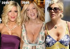 Tori Spelling: worst boob job ever! daddy is a billionaire and couldnt pay for a better plastic surgeon?? ew.