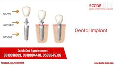 What is a dental implant : A dental implant is a prosthetic replacement for a lost tooth. Natural teeth consist of the crown and the root. More : http://goo.gl/zwJX85