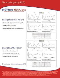 Information Sheet  Diopsys NovaErg