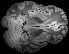 The human brain in 'unprecedented' detail, thanks to powerful MRI - STAT Mri Brain, Basal Ganglia, Human Embryo, Massachusetts General Hospital, The Day Will Come, Science Art, Detail, Anatomy, Body Mapping
