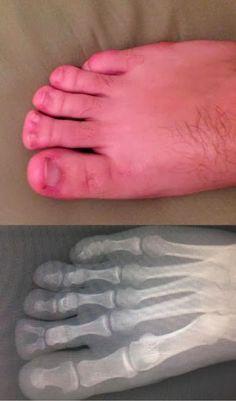 Small foot fuck something
