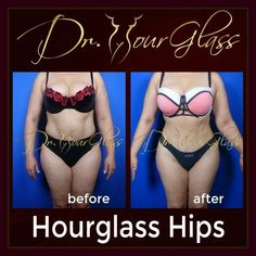 The #HourglassHips procedure is one of the best procedure you can request if you want to have a wider hips. Not only that it will make your hips wider by means of #fattransfer but also make your waist small due to liposuction. #drcortes #drhourglass #drcurvas #plasticsurgery #tummytuck #lipo #surgery #plasticsurgeon #topsurgeon #houstontopsurgeon