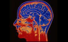 Tinnitus silenced by retuning brain