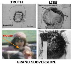 J.F.K. Autopsy Photos | Autopsy photos head gun shot wound jfk assassination.