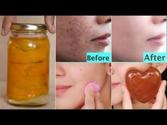 Miracle Overnight Trick jo Dark Spots🌑 Pigments Patches dead skin kare clear glowing skin in 7 Days - YouTube Whitening Soap, Dead Skin, Dark Spots, Glowing Skin, Healthy Skin, Beauty Hacks, Remedies, Patches, Skin Care