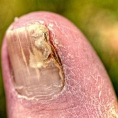 Top 5 Natural Cures For Toenail Fungus