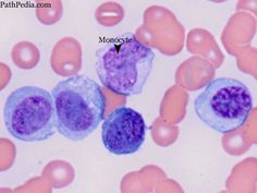 plasma vs bec The word is from ancient greek νέος- neo new and πλάσμα plasma formation, creation  neoplasia vs tumor  a neoplasm can be caused by an abnormal.