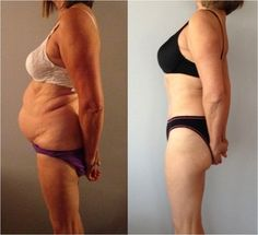 The patient is a 62 year old female who had a Abdominoplasty and a Tummy Tuck. Want to know about the Doctor? Head over to RealSelf.com to learn more.