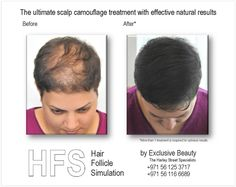 Prevent hair loss? HFS – Hair Follicle Simulation camouflages hair loss in a natural looking way.  http://exclusiveaesthetic.com/hair-loss-and-hair-follicle-simulation/