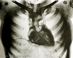 from the Burns Archive cardiology collection