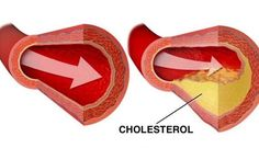 Týchto 12 potravín rozpustí a vyplaví usadený cholesterol z vašich ciev   Báječné Ženy